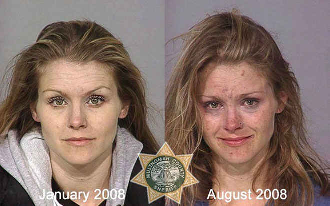 before-after-pics-drug-abusers1