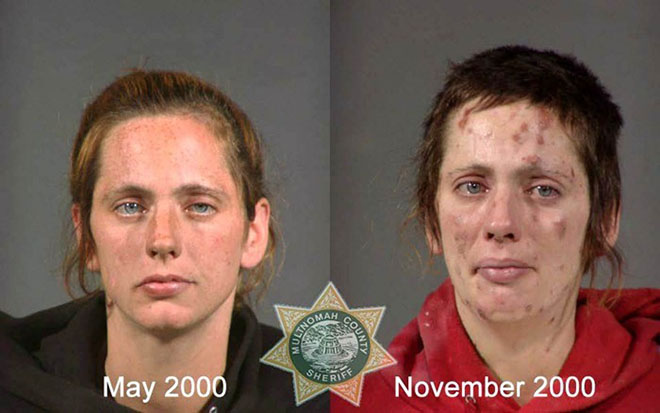 before-after-pics-drug-abusers10