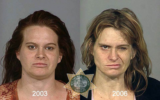 before-after-pics-drug-abusers11