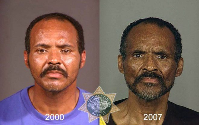before-after-pics-drug-abusers12