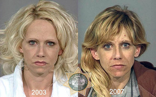 before-after-pics-drug-abusers13
