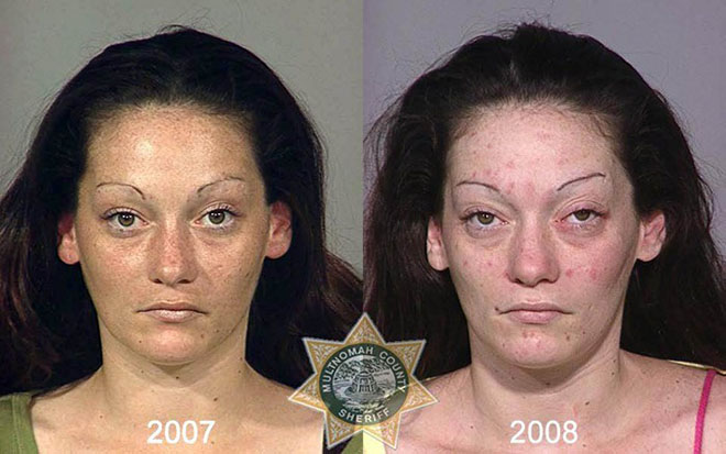 before-after-pics-drug-abusers14