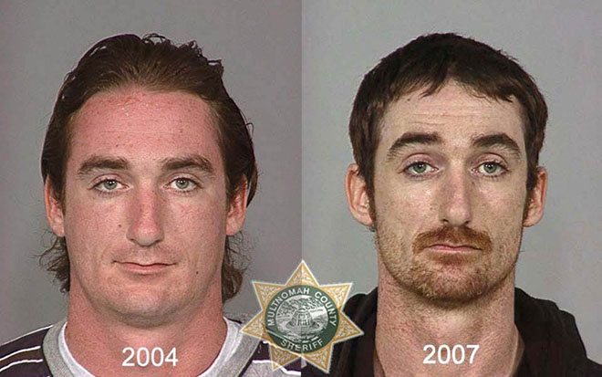before-after-pics-drug-abusers15