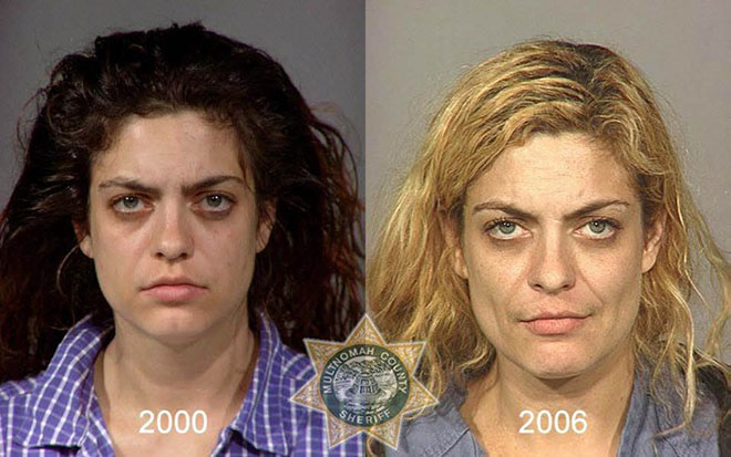 before-after-pics-drug-abusers16