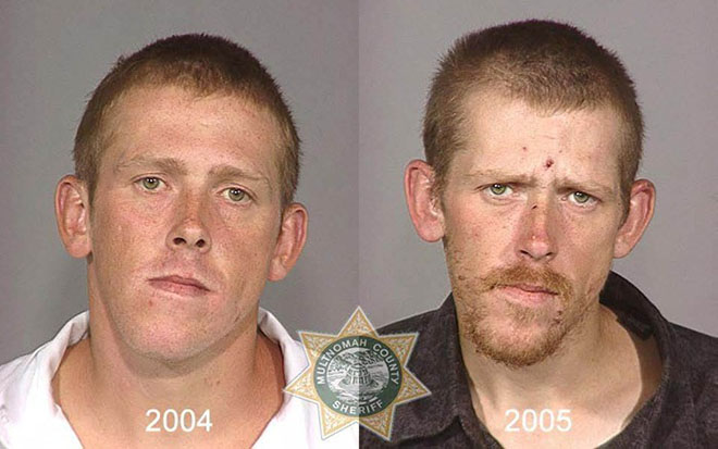 before-after-pics-drug-abusers18