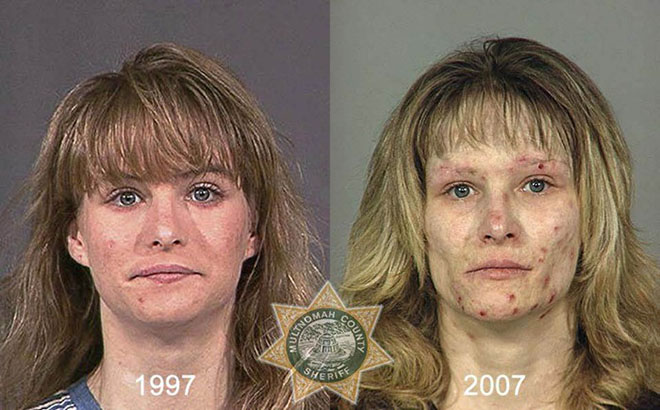 before-after-pics-drug-abusers19