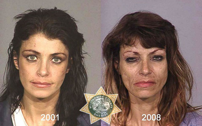 before-after-pics-drug-abusers2