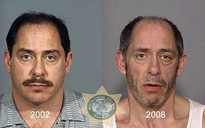before-after-pics-drug-abusers20