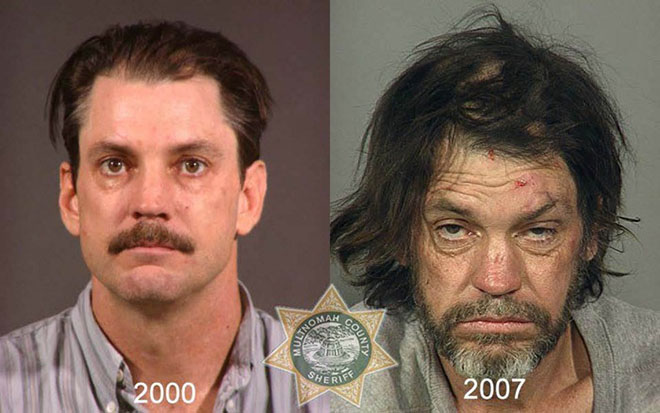 before-after-pics-drug-abusers3