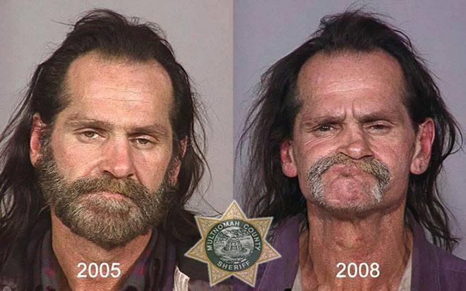 before-after-pics-drug-abusers4