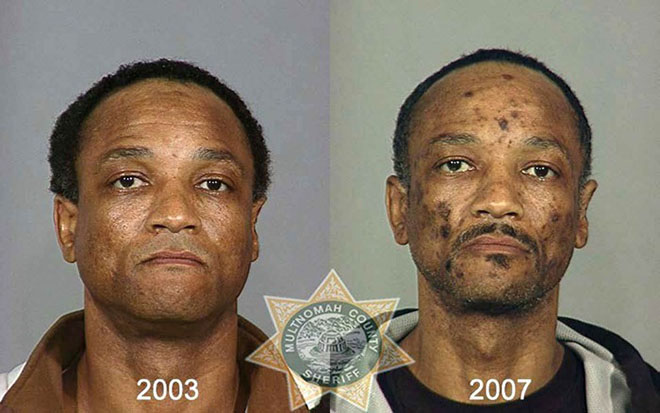 before-after-pics-drug-abusers5