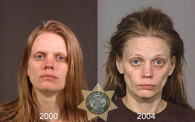 before-after-pics-drug-abusers6