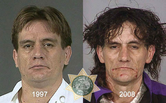 before-after-pics-drug-abusers7