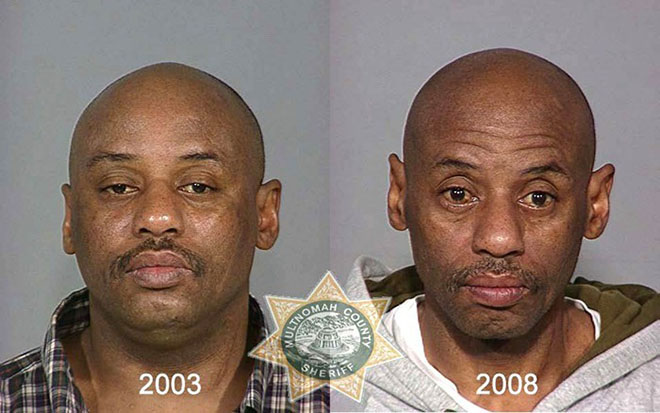 before-after-pics-drug-abusers8