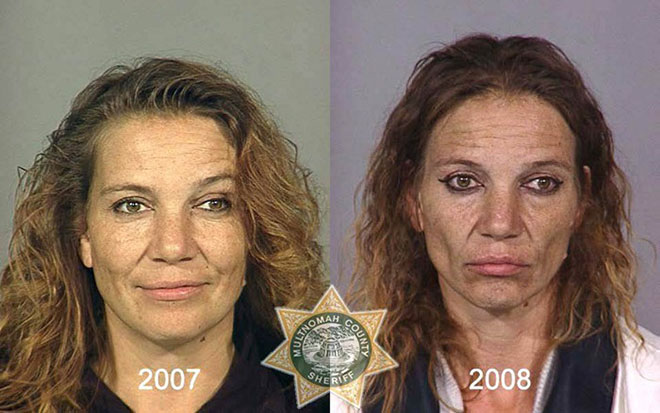 before-after-pics-drug-abusers9