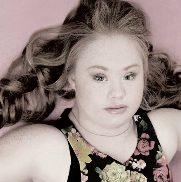 down-syndrome-model-5