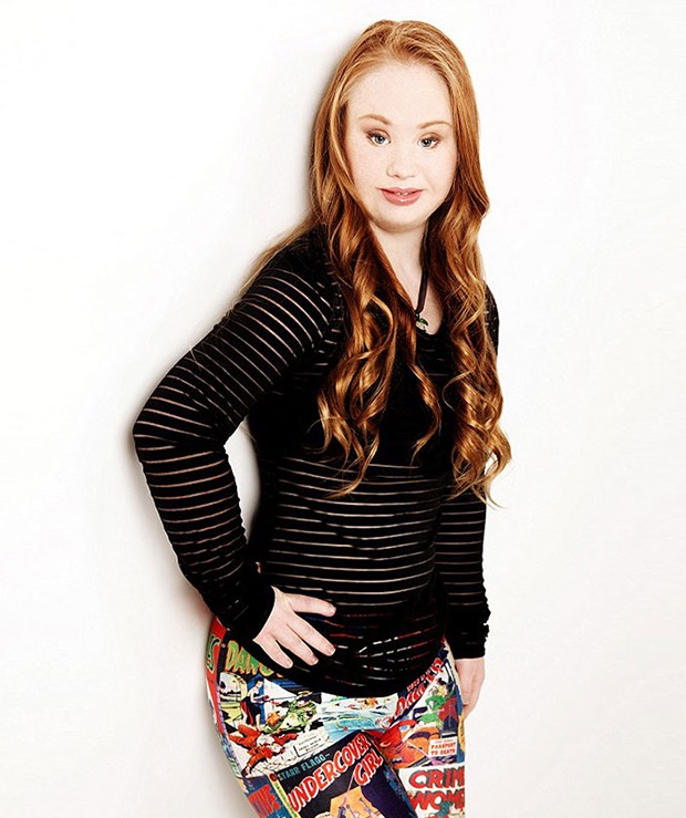 down-syndrome-model-8