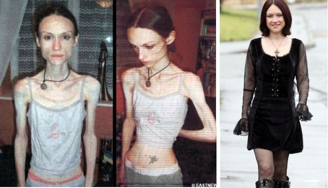 Inspiring Before And After Photos Of People Who Won The Battle - 15 inspiring women won against eating disorders